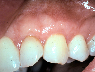 After Recession Teeth Treatment